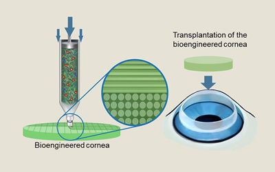 Researchers develop transparent artificial cornea using bio ink and 3D cell printer