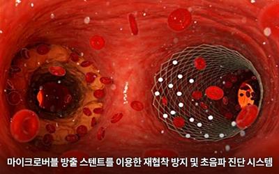 신소재 한세광 교수팀, 소화제 '버블'로 막힌 혈관 촬영하고 뚫는 스텐트 개발