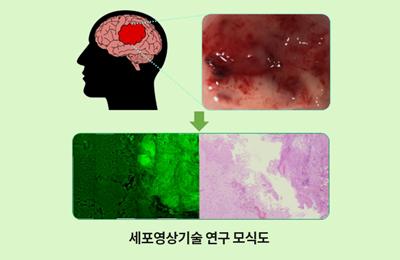 기계·융합생명 김기현 교수 공동연구팀, 뇌종양 경계를 실시간으로 찾아낸다